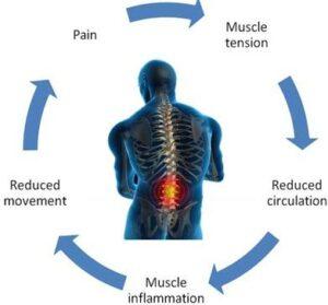 Pain-Cycle_